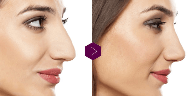 Why Nose Bulge Decrease Naturally Isn't Any Buddy